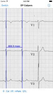 Measuring RR interval, iPhone 6 Plus